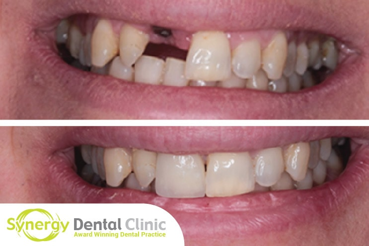 Case Study Single Dental Implant Procedure