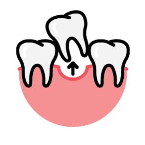 Synergy Dental Extraction