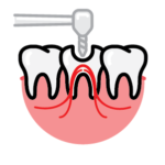 Endontics root canal