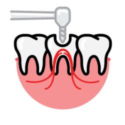 Endodontics (Root Canal)
