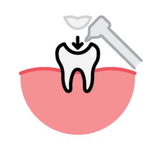 Inlays Dental Fillings