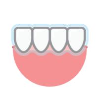Clear Teeth Braces