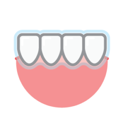 Invisalign® Clear Teeth Aligners