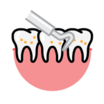 Periodontal Assessment