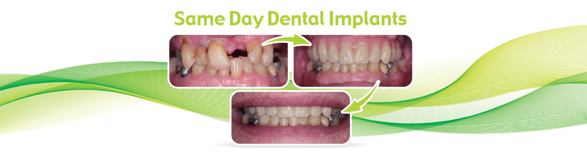 Same-Day-Dental-Implants1