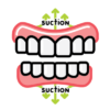 Suction Dentures