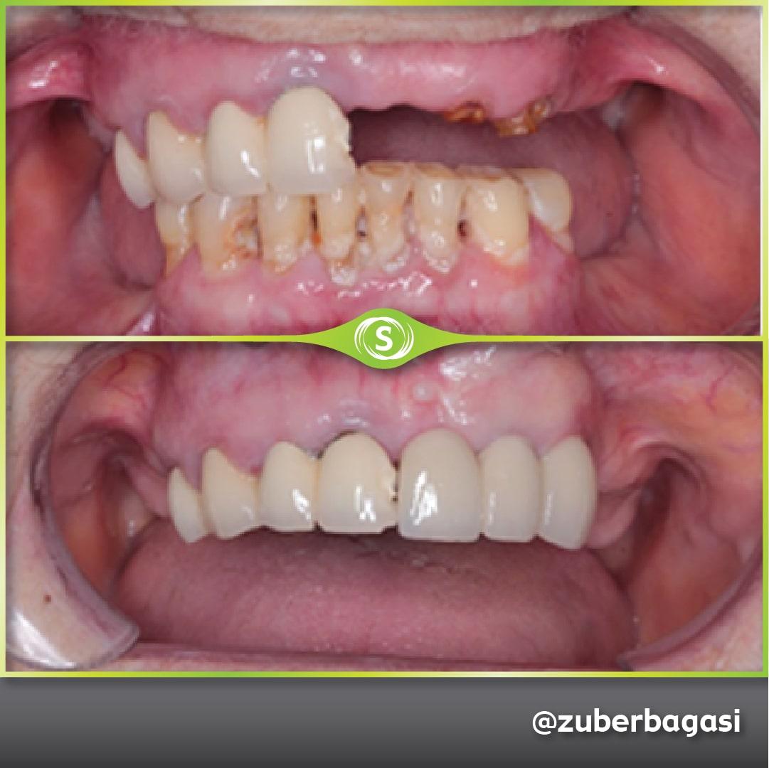 3 Unit Dental Implant Bridge - Dr. Zuber Bagasi