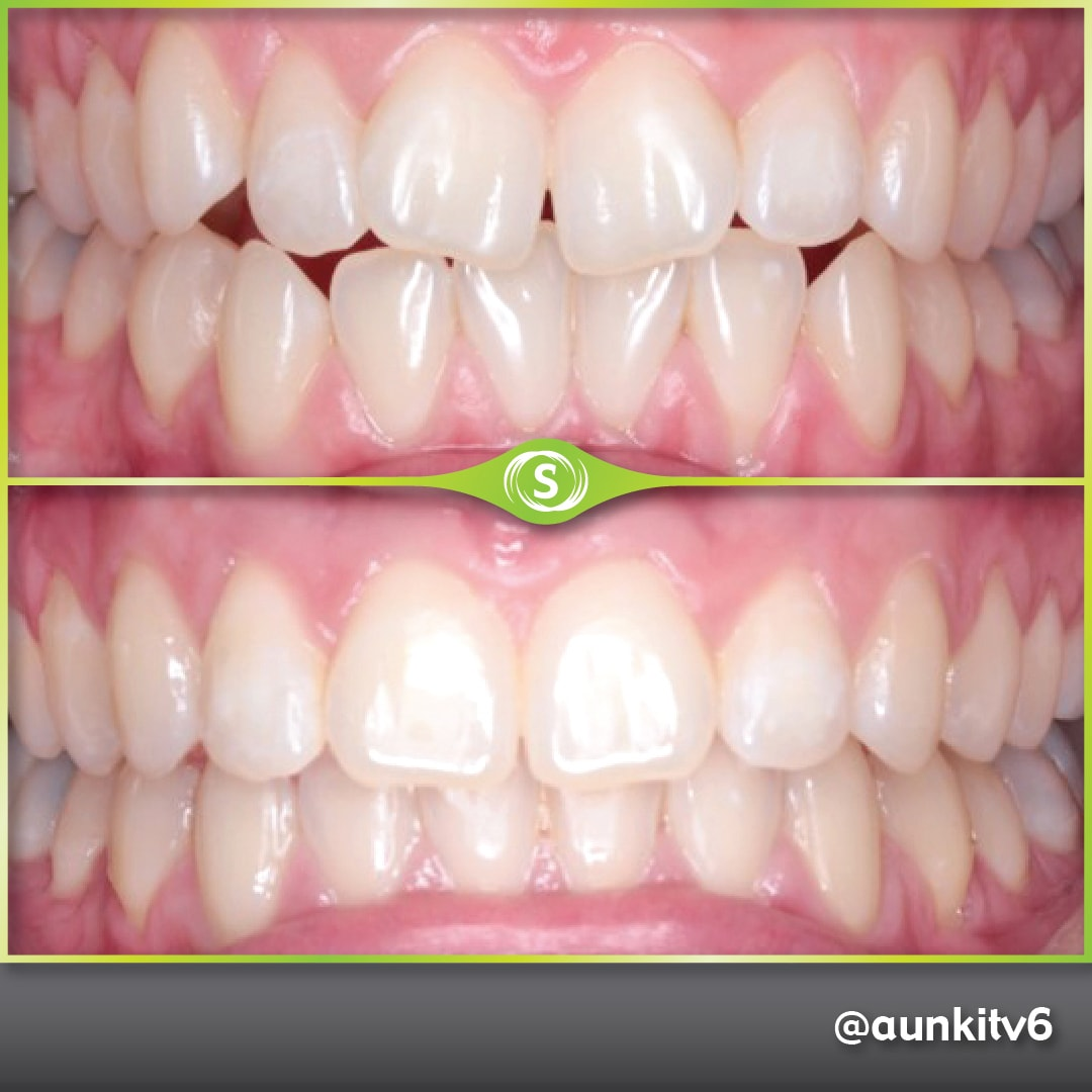 Invisalign - Composite Bonding - Dr. Aunkit Vaja