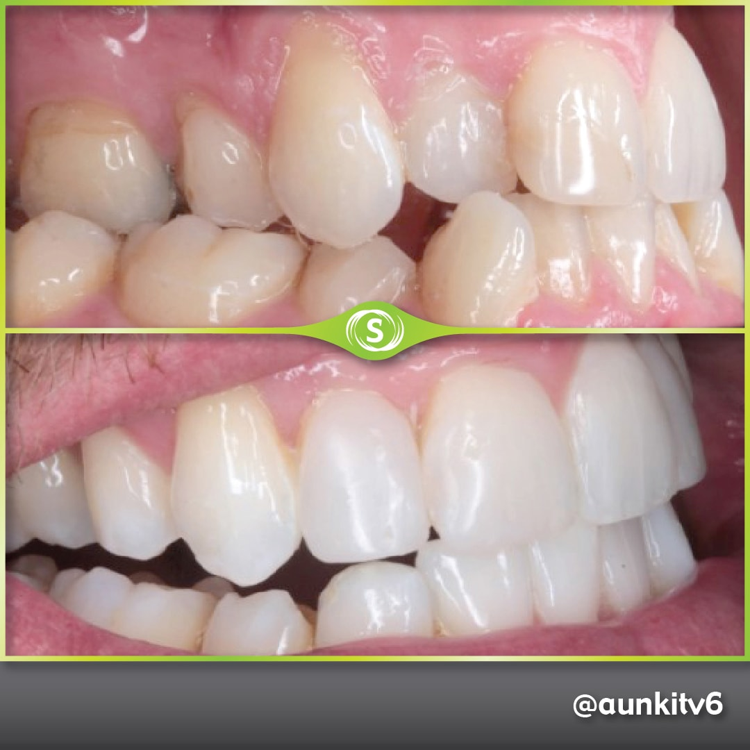 Invisalign, Composite Bonding, Teeth Whitening - Dr. Aunkit Vaja