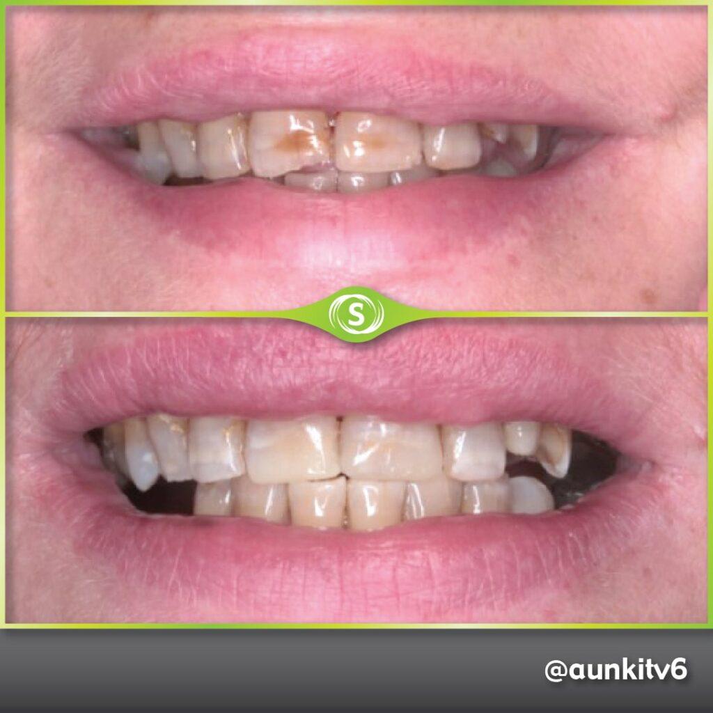 Composite Bonding, Teeth Whitening - Dr. Aunkit Vaja