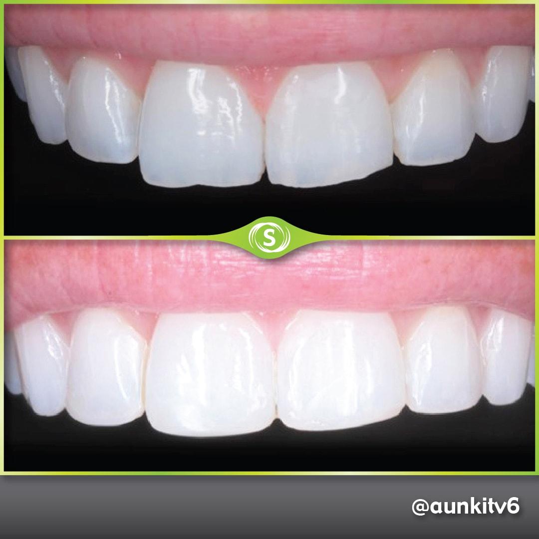 Composite Bonding + Teeth Whitening - dr. Aunkit Vaja