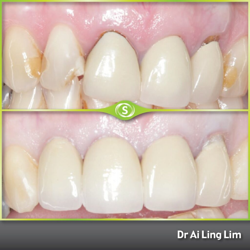 Composite Bonding - Dr. Ai Ling Lim