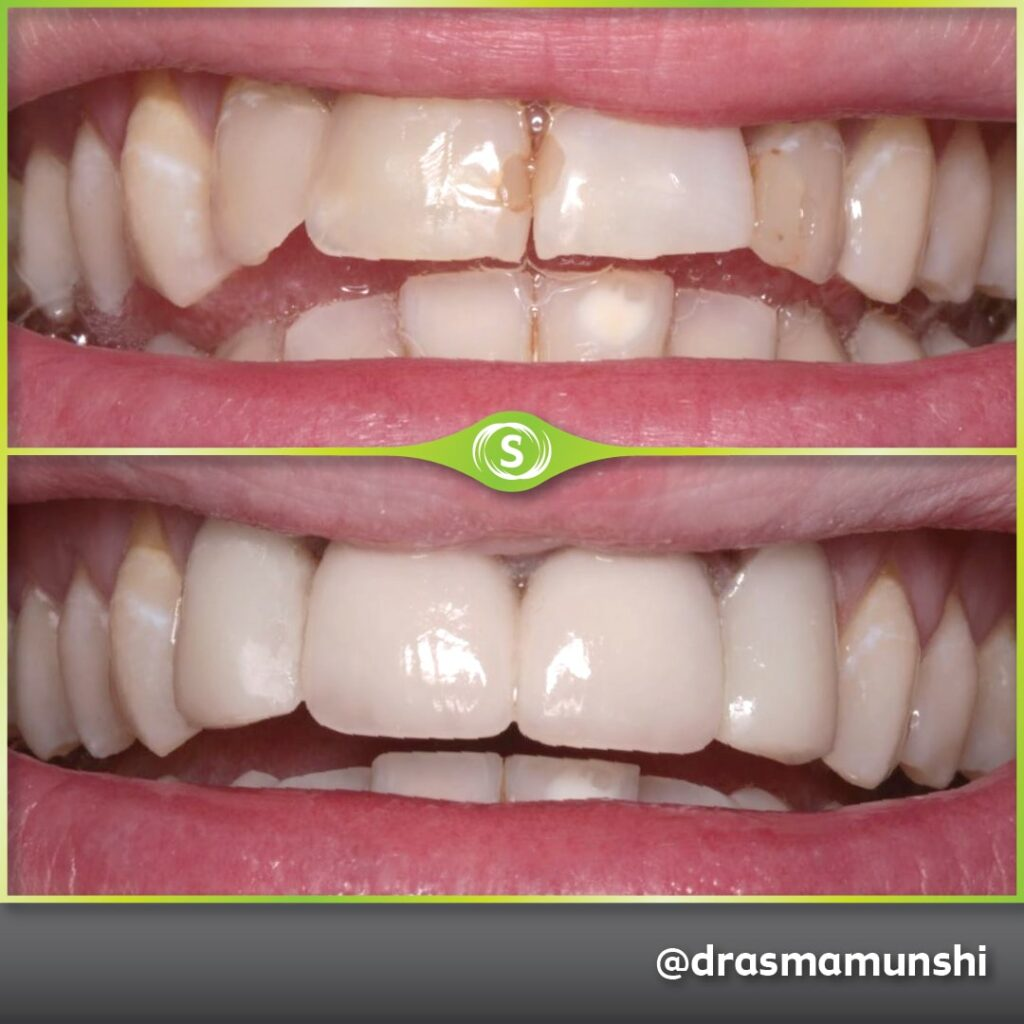 Cosmetic Dentistry - Dr. Asma Valli