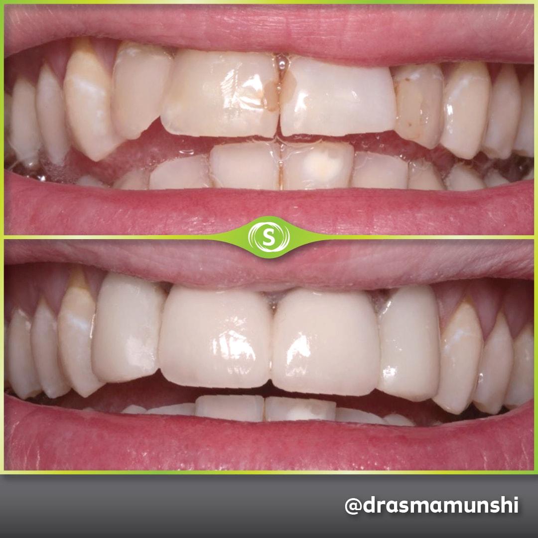 Cosmetic Dentistry - Dr. Asma Valli