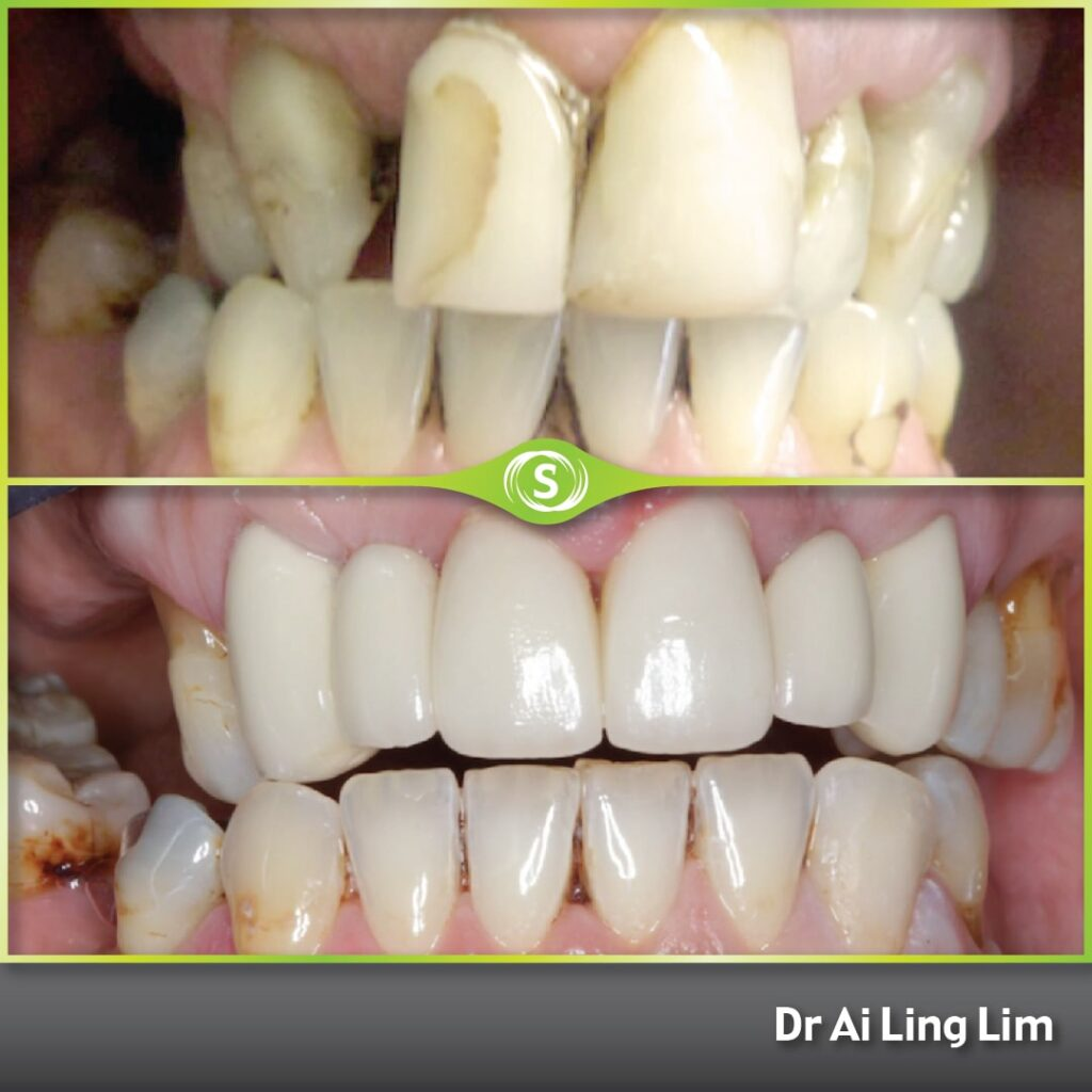 Cosmetic Dentistry - Crowns and Bridges - Dr. Ai Ling Lim