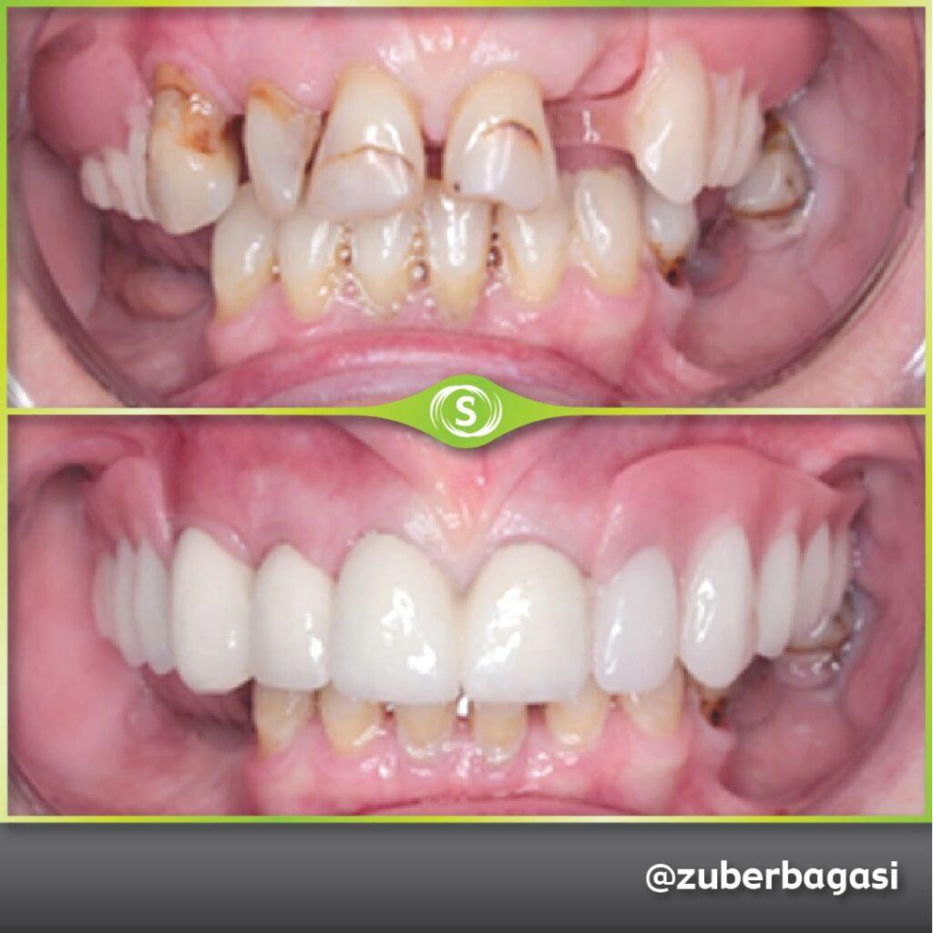 B&A Dentures ZB 2b-min