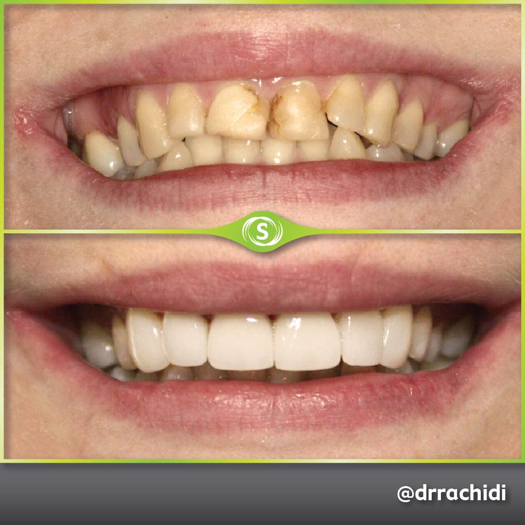 Dental Crowns E-max Zirconia - Dr. Karim Rachidi