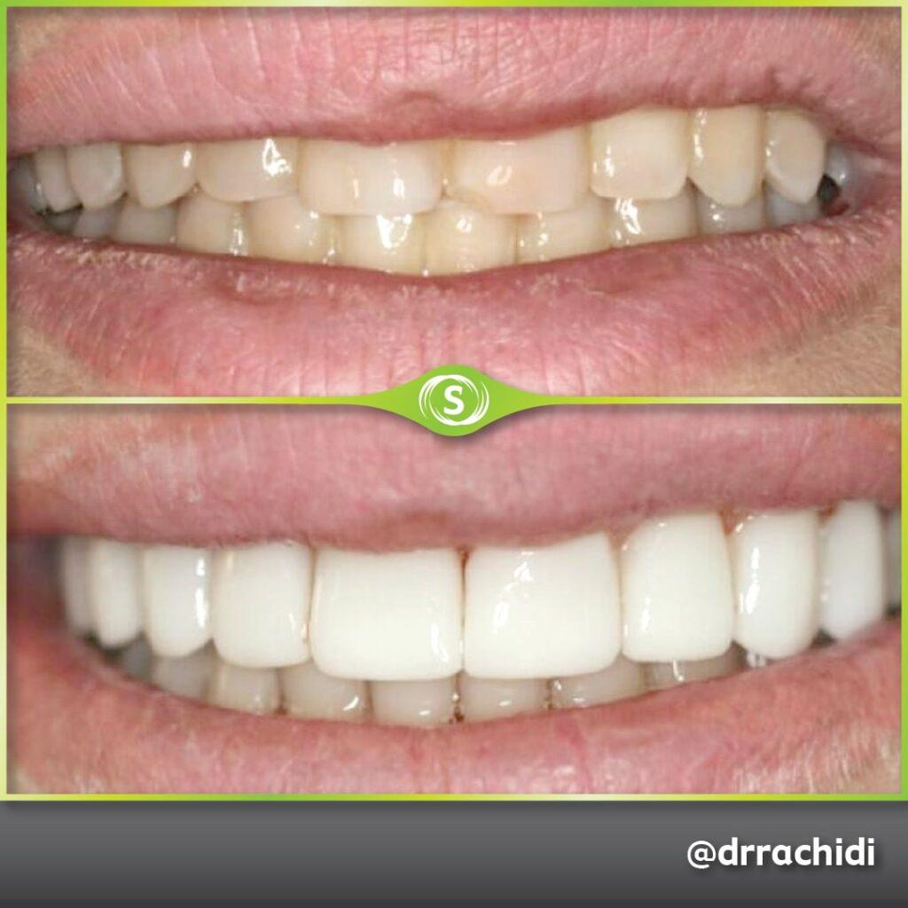 Dental Veneers - Dr. Karim Rachidi