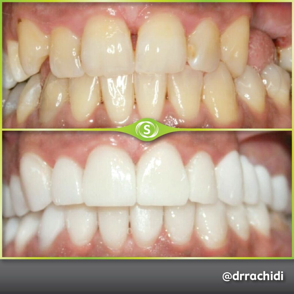Dental Veneers E-max Zirconia - Dr. Karim Rachidi