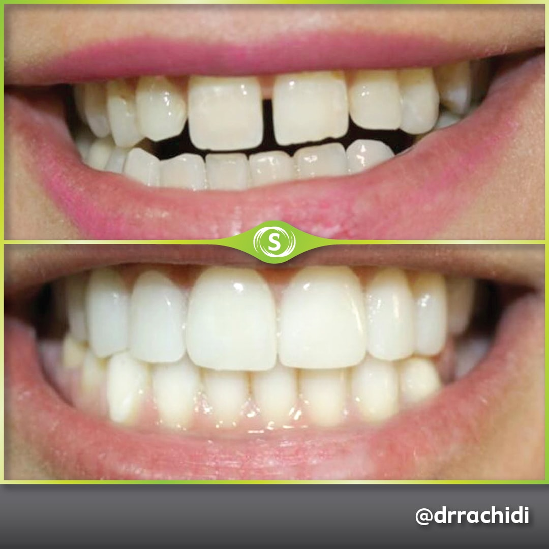 Dental Veneers E-max Zirconia - Dr. Karim Rachidi