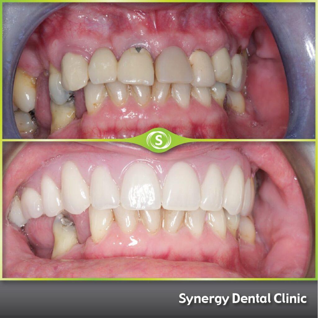 B&A FSD Implants SDC 1a-min