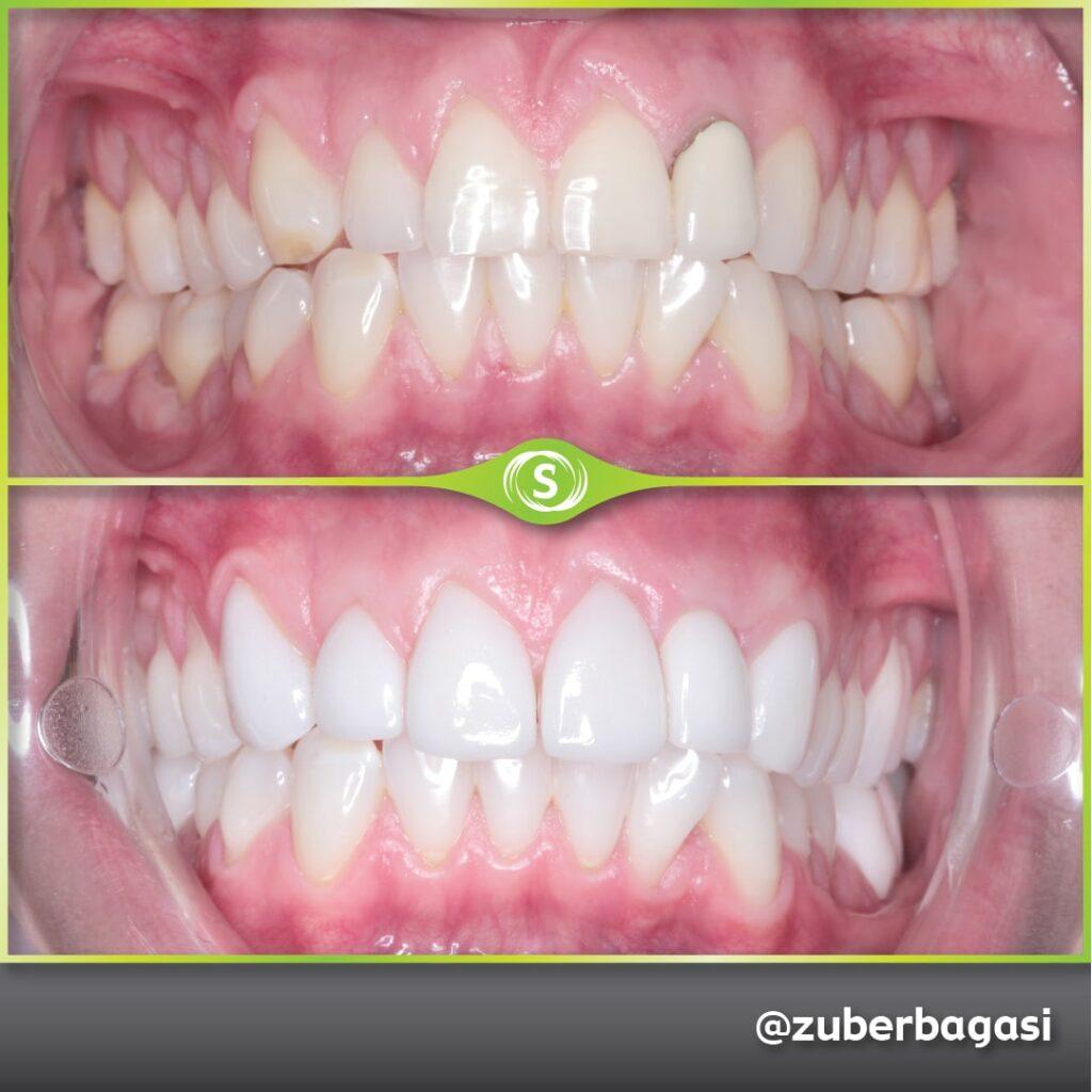 B&A Implant Veneers ZB 1a-min