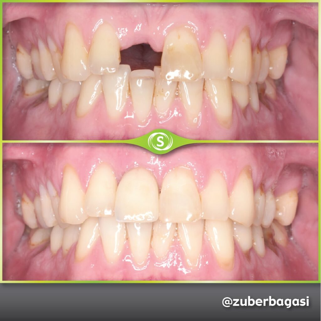 B&A Implants ZB 1a-min