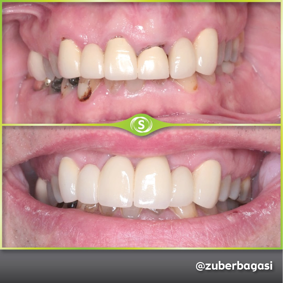 Dental Implants 6 Unit Bridge - Dr. Zuber Bagasi