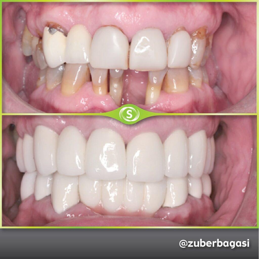 B&A Implants ZB 4a-min