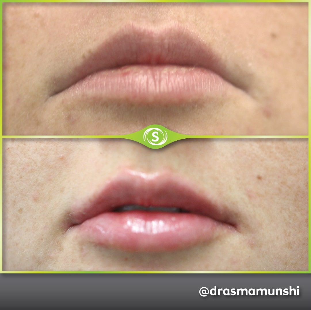 B&A Lip Fillers AM 1a-min