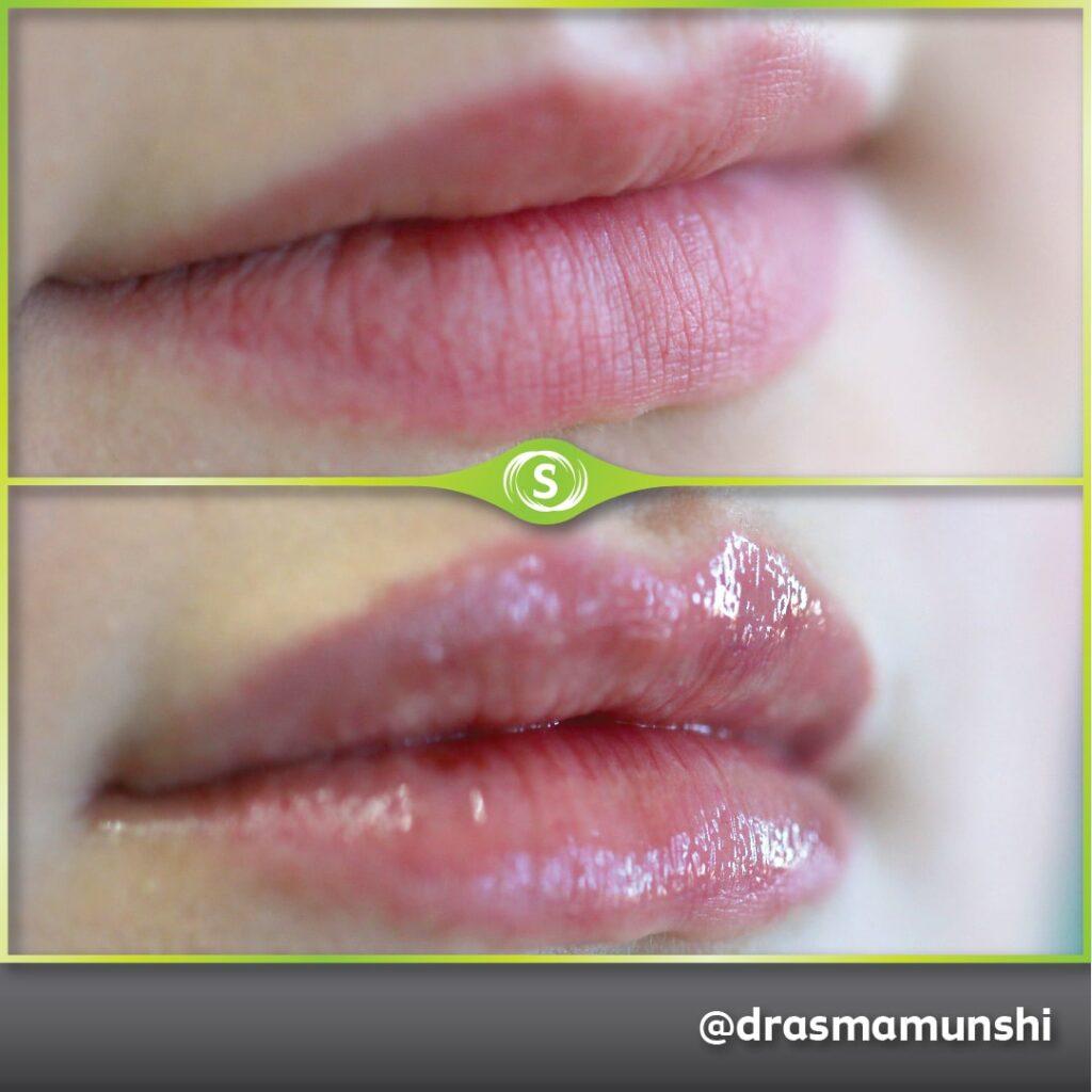 B&A Lip Fillers AM 2-min