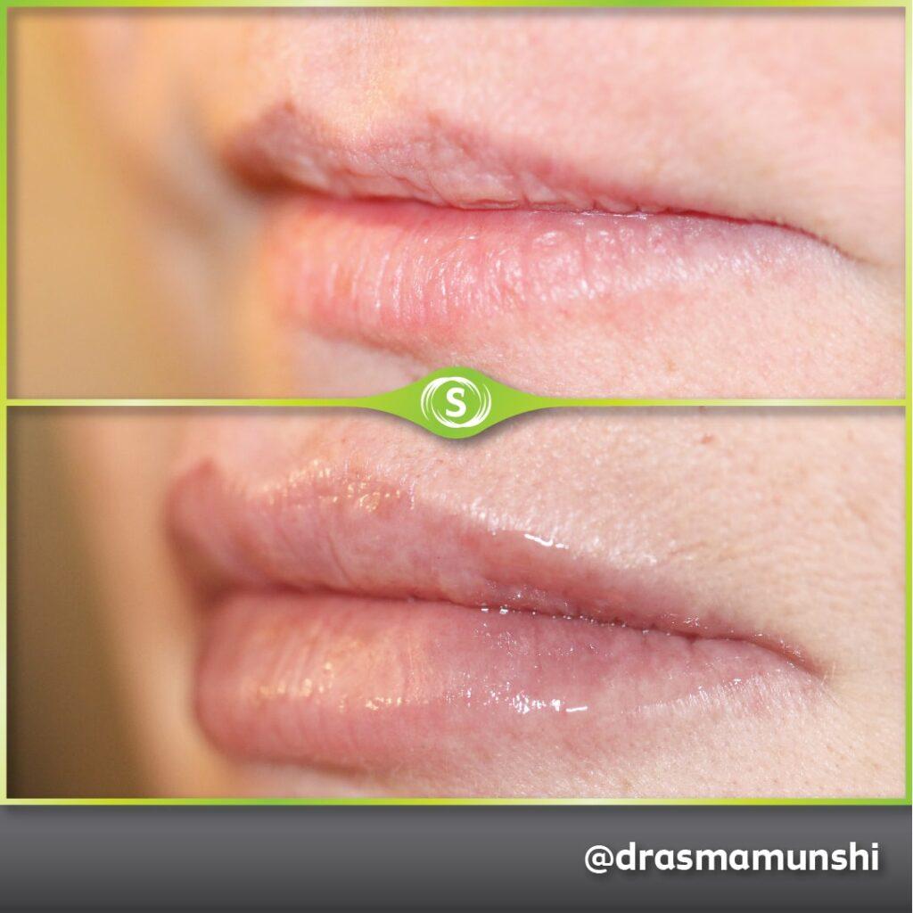 B&A Lip Fillers AM 3a-min