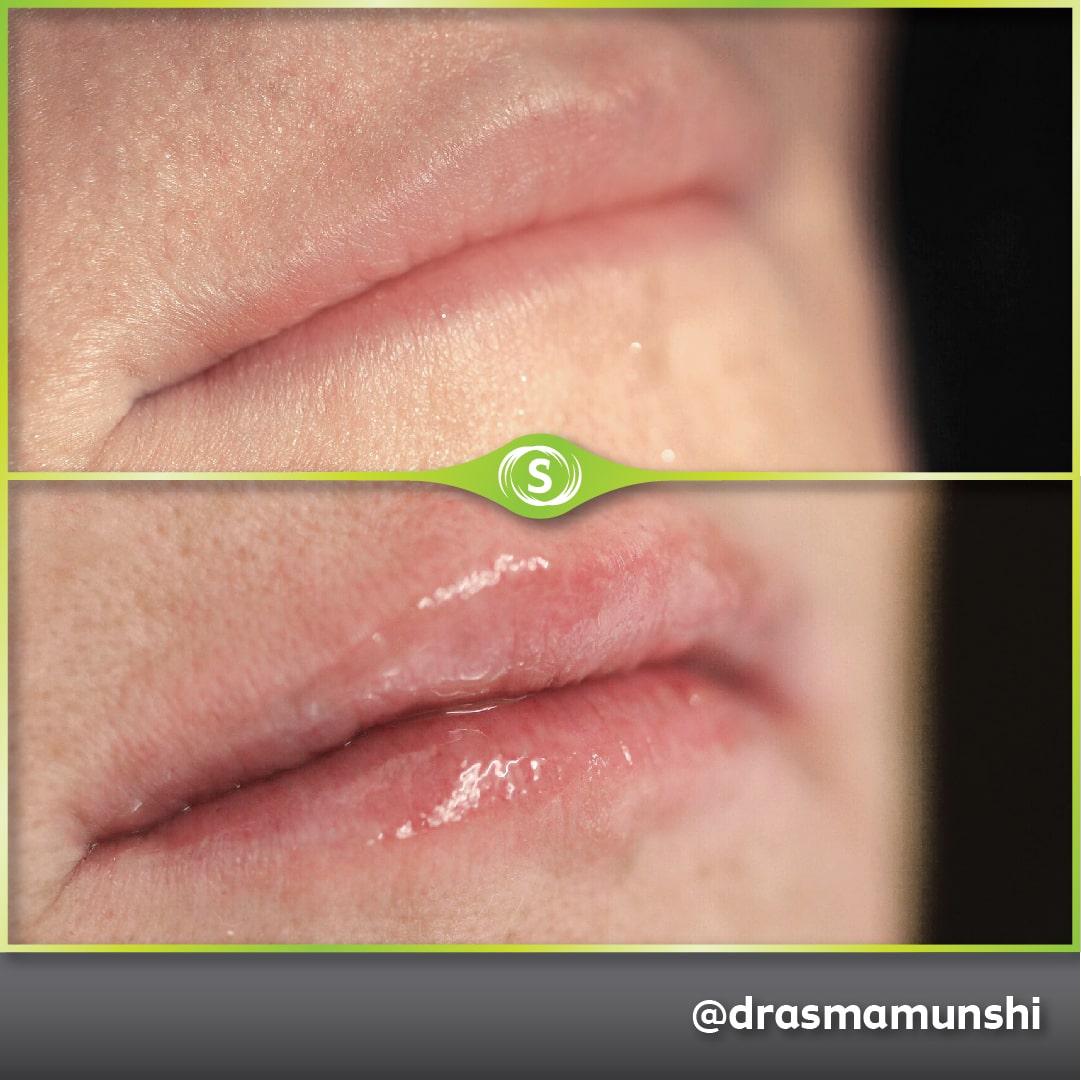B&A Lip Fillers AM 4-min