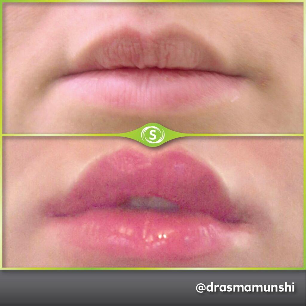 B&A Lip Fillers AM 5-min