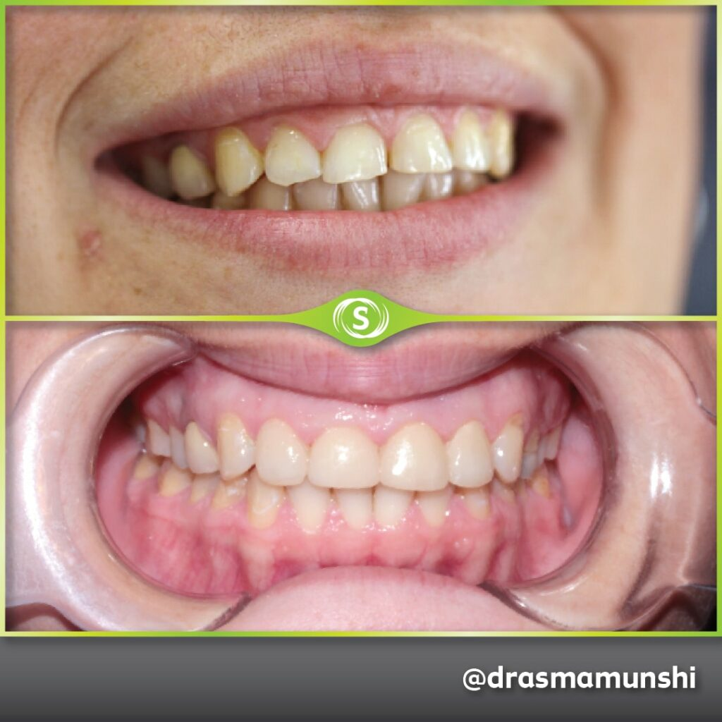 Cosmetic Dentistry - Veneers - Dr. Asma Valli