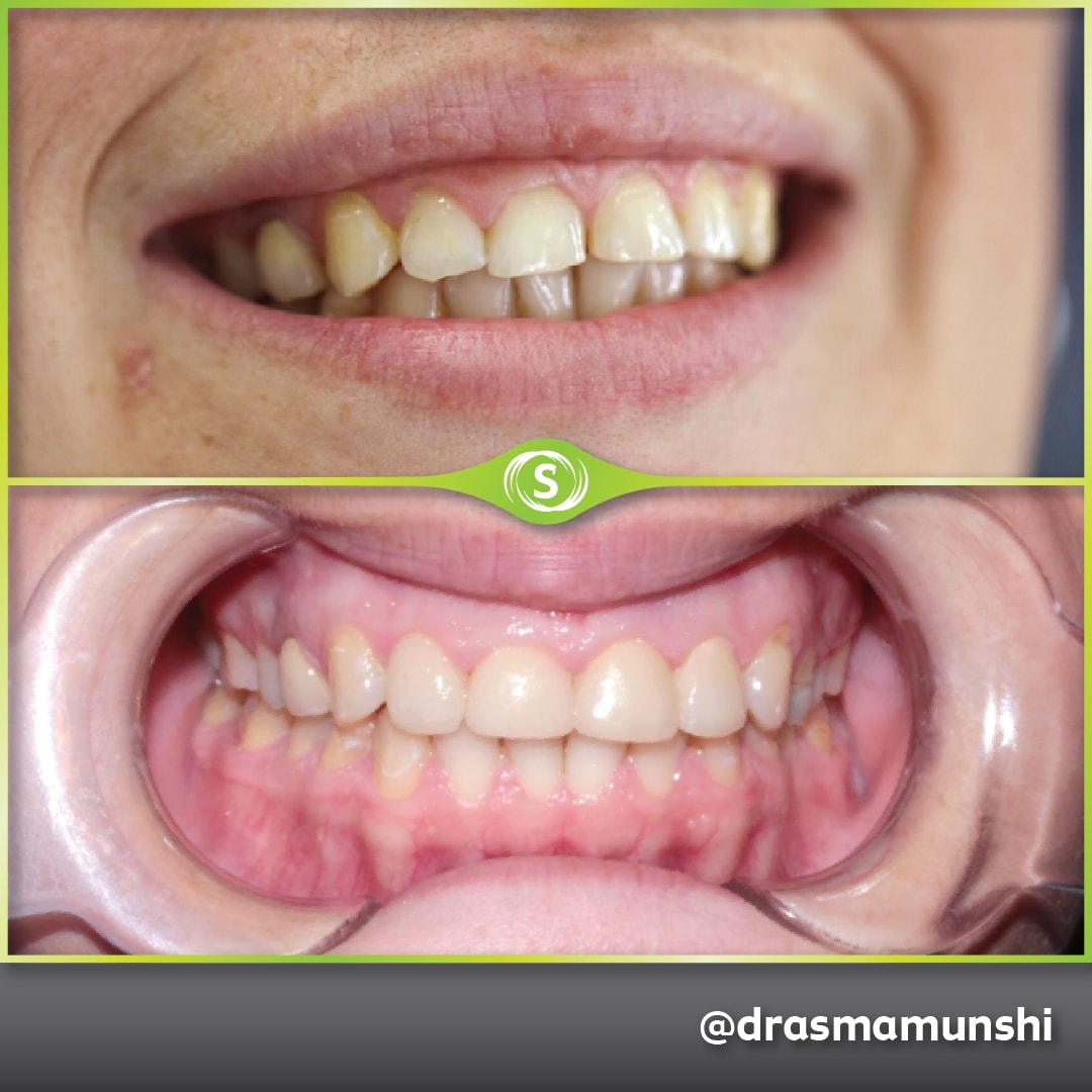 Cosmetic Dentistry - Veneers - Dr. Asma Valli