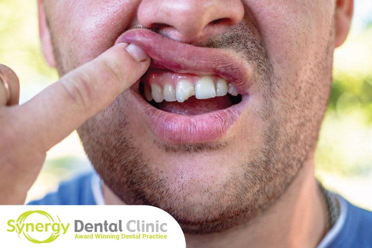 Help on Chipped Teeth