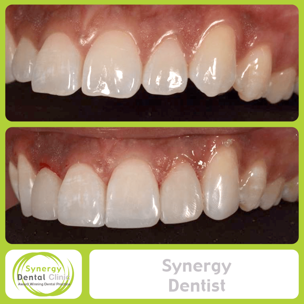 Synergy Dentist 10