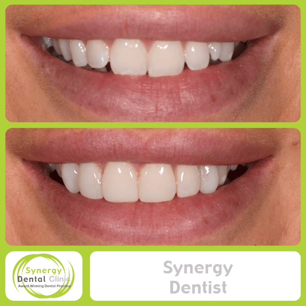 Synergy Dentist 11