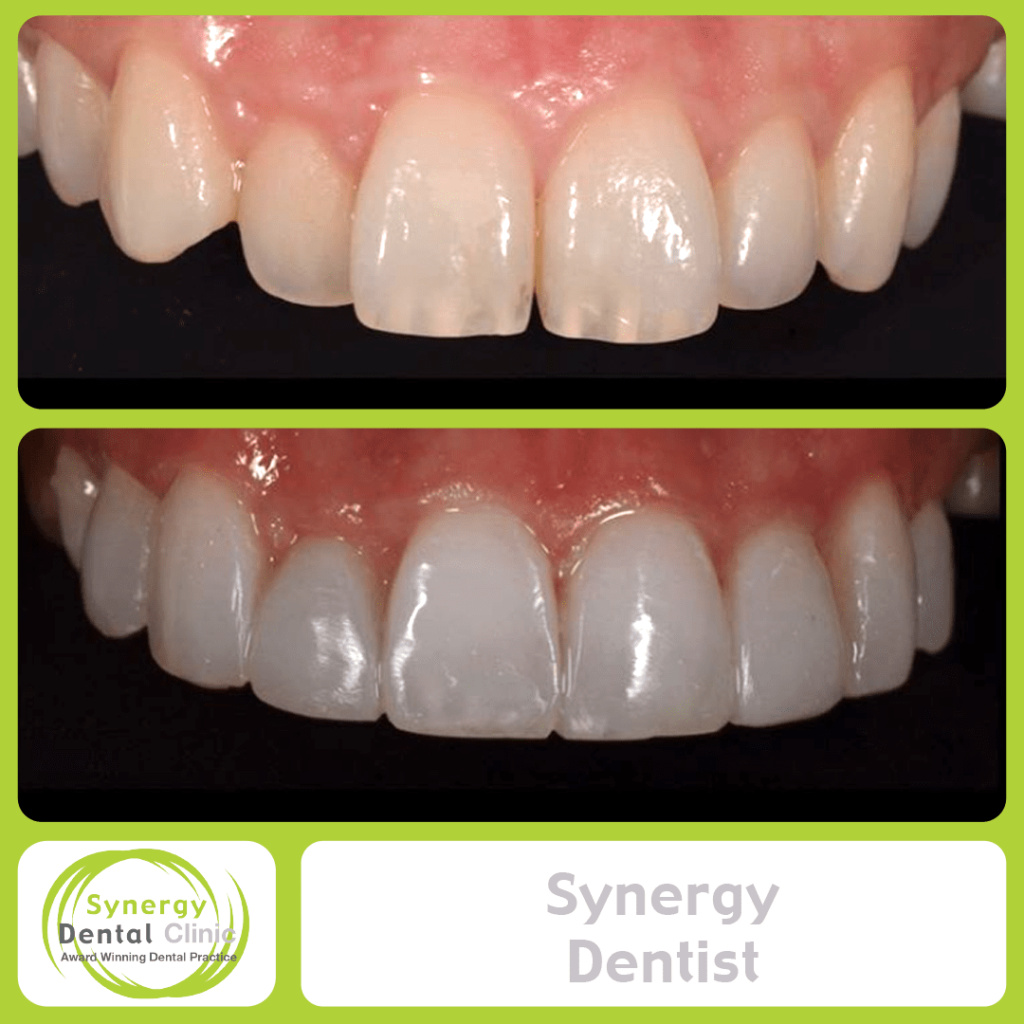 Synergy Dentist 2