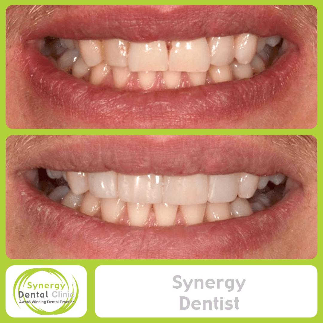 Synergy Dentist 3
