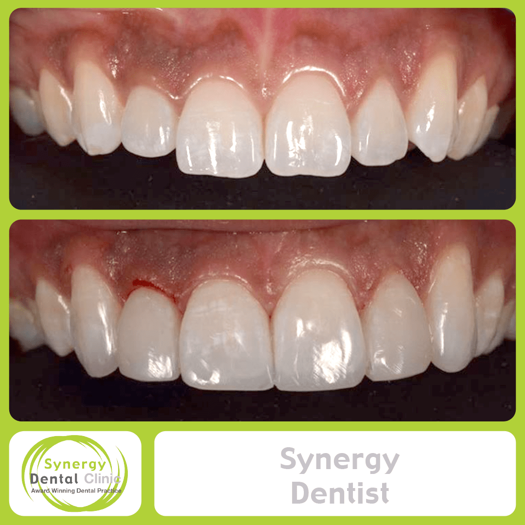 Synergy Dentist 4