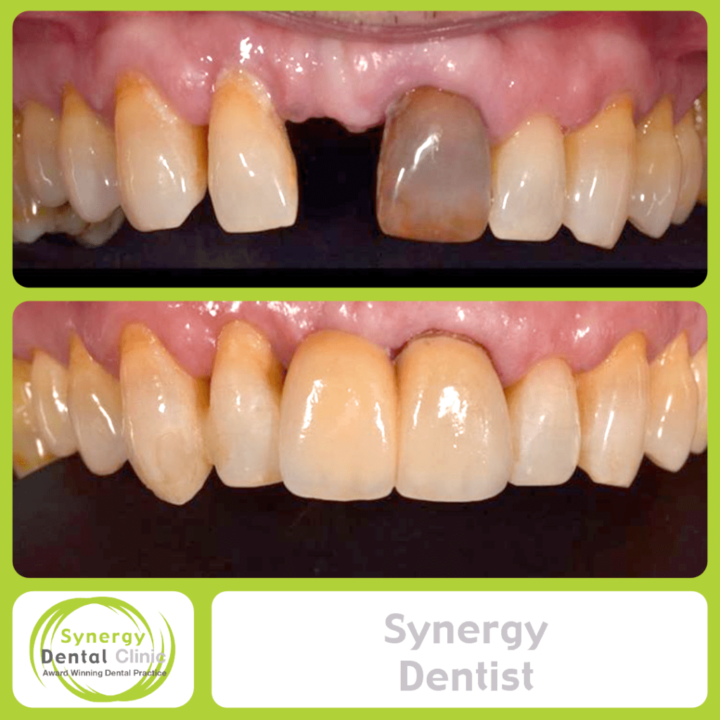 Synergy Dentist 5