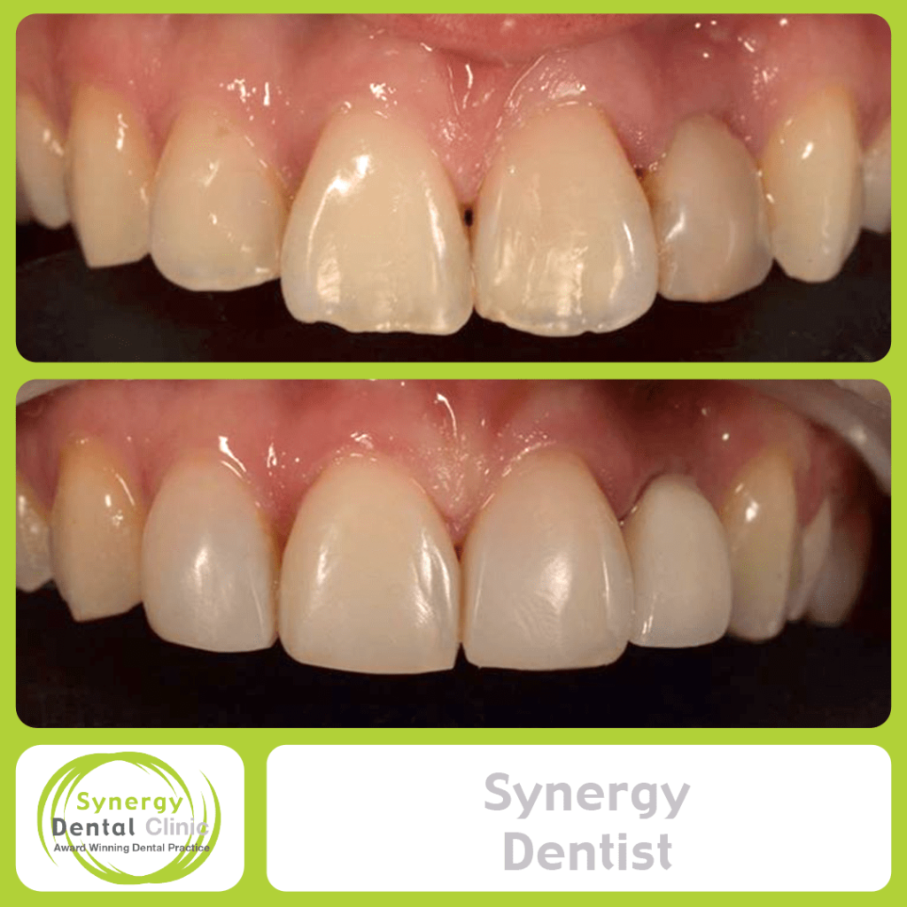 Synergy Dentist 6