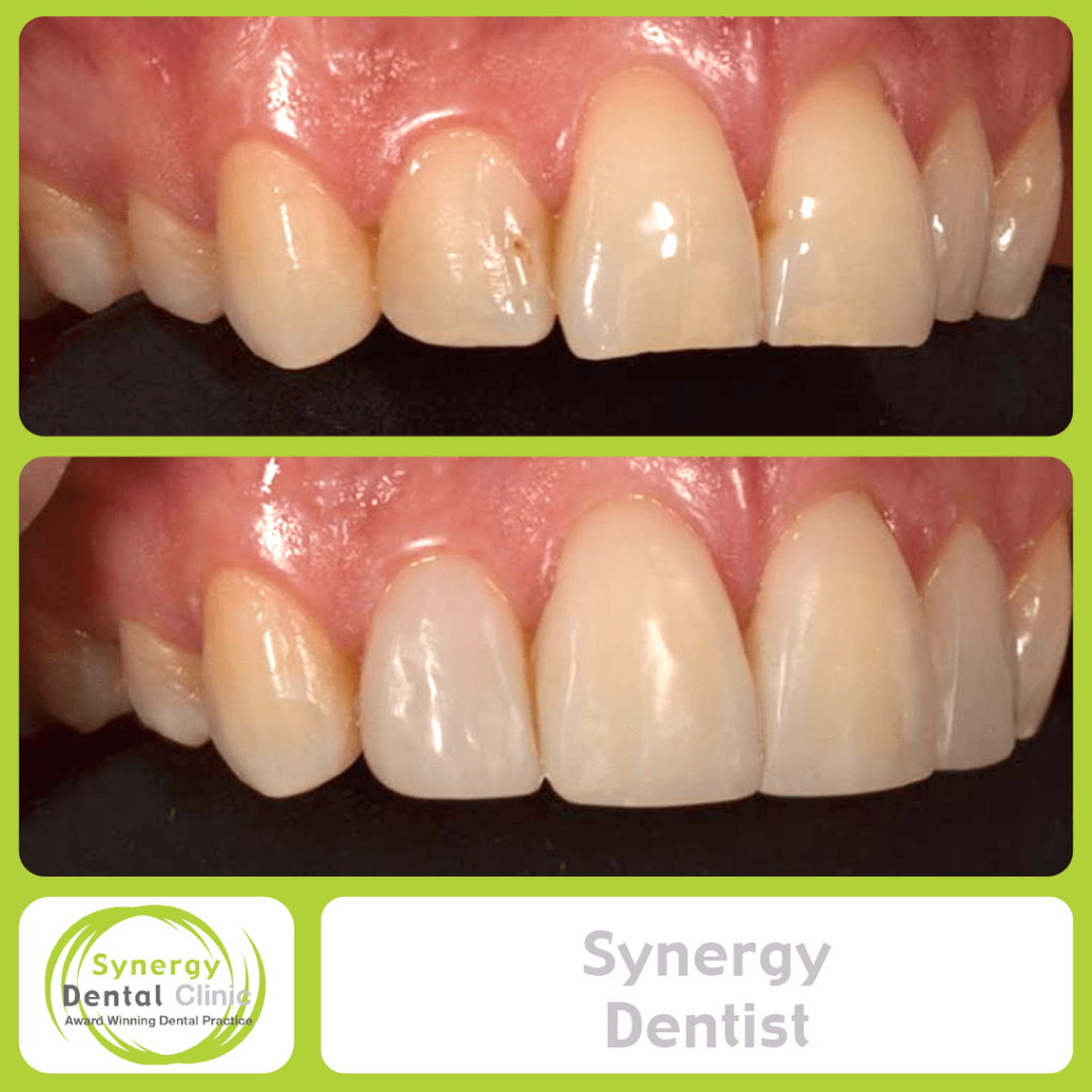 Synergy Dentist 8