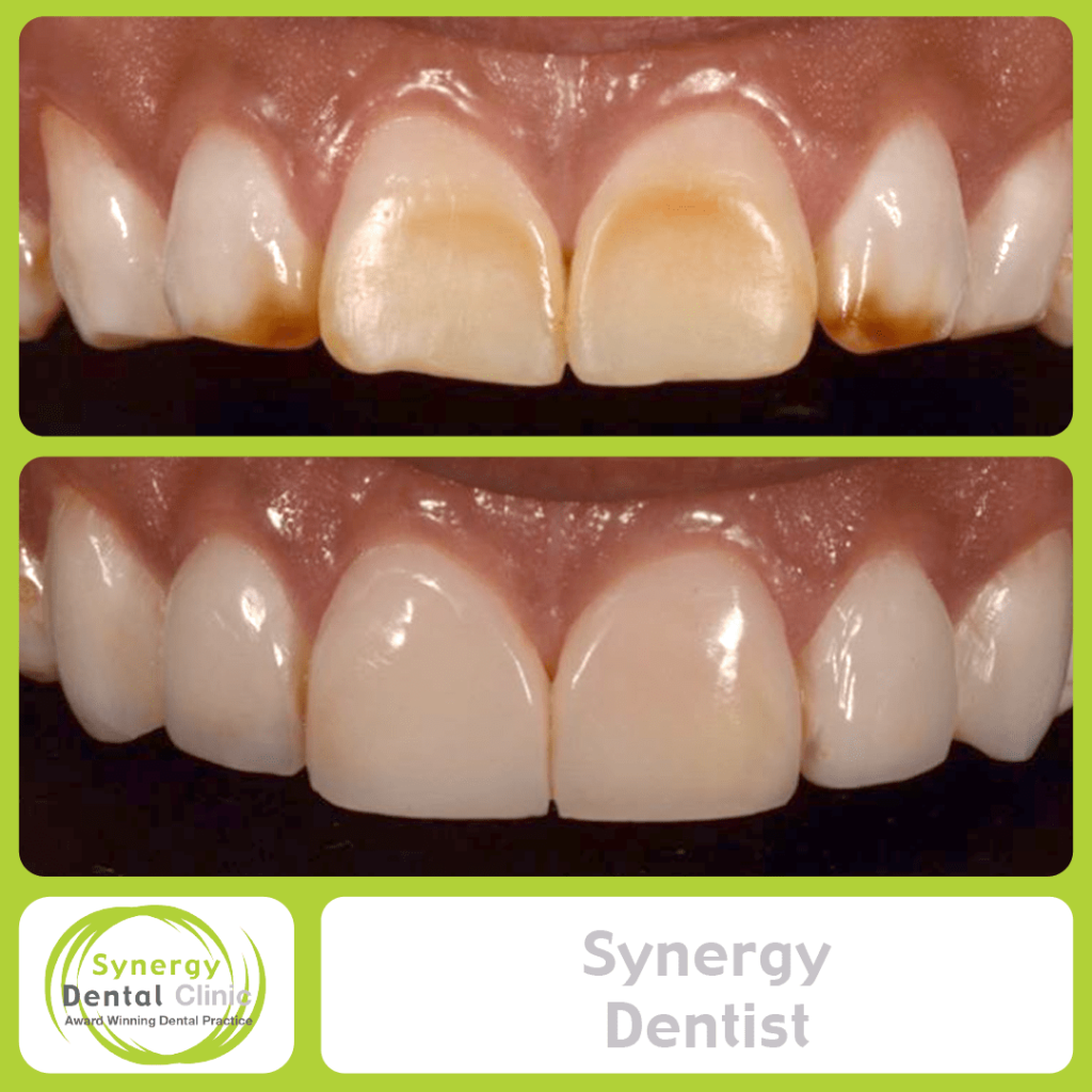 Synergy Dentist 9