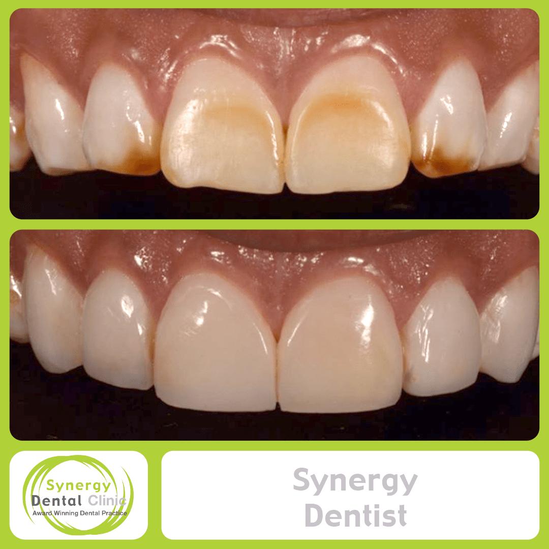 Synergy Dentist 9