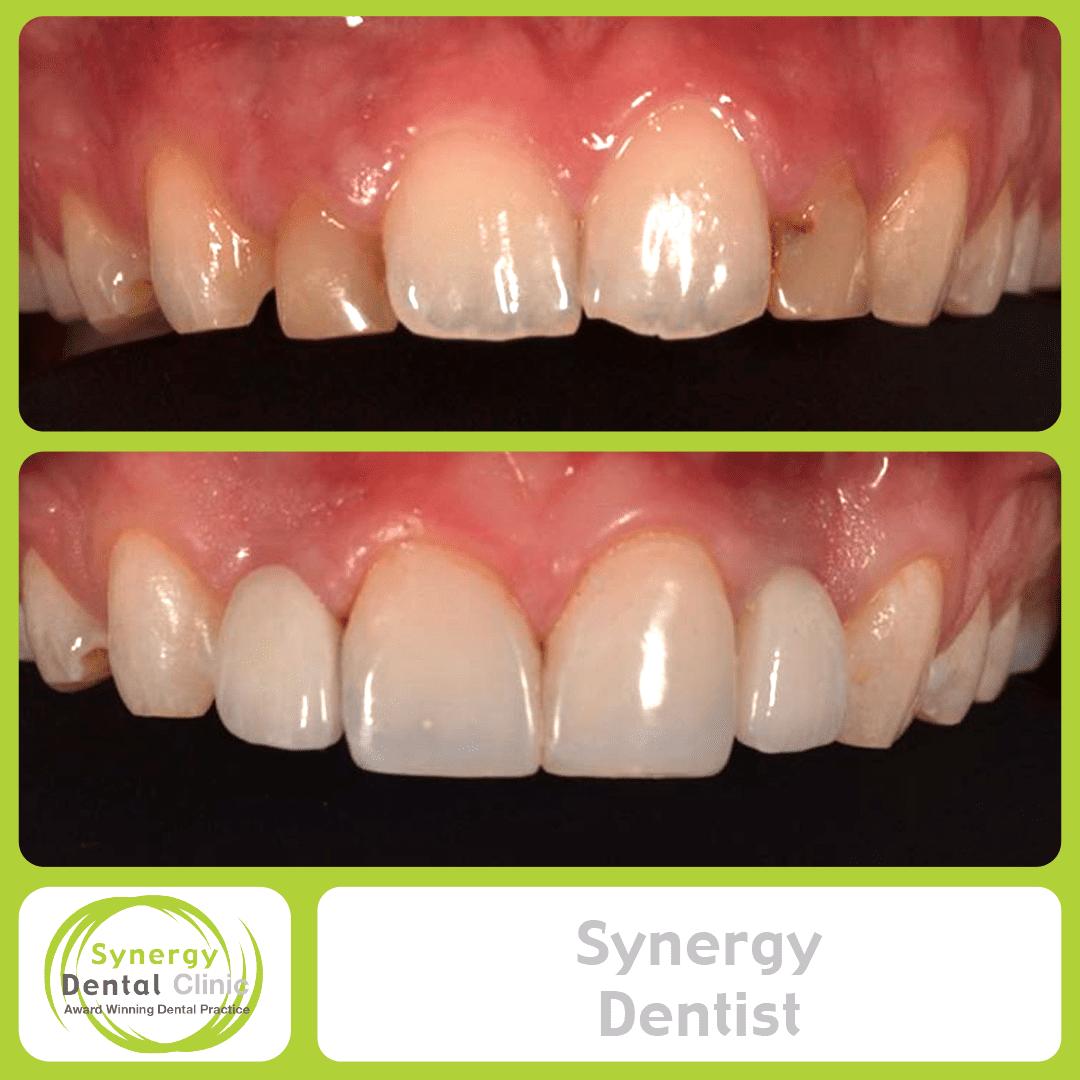 Synergy Dentist