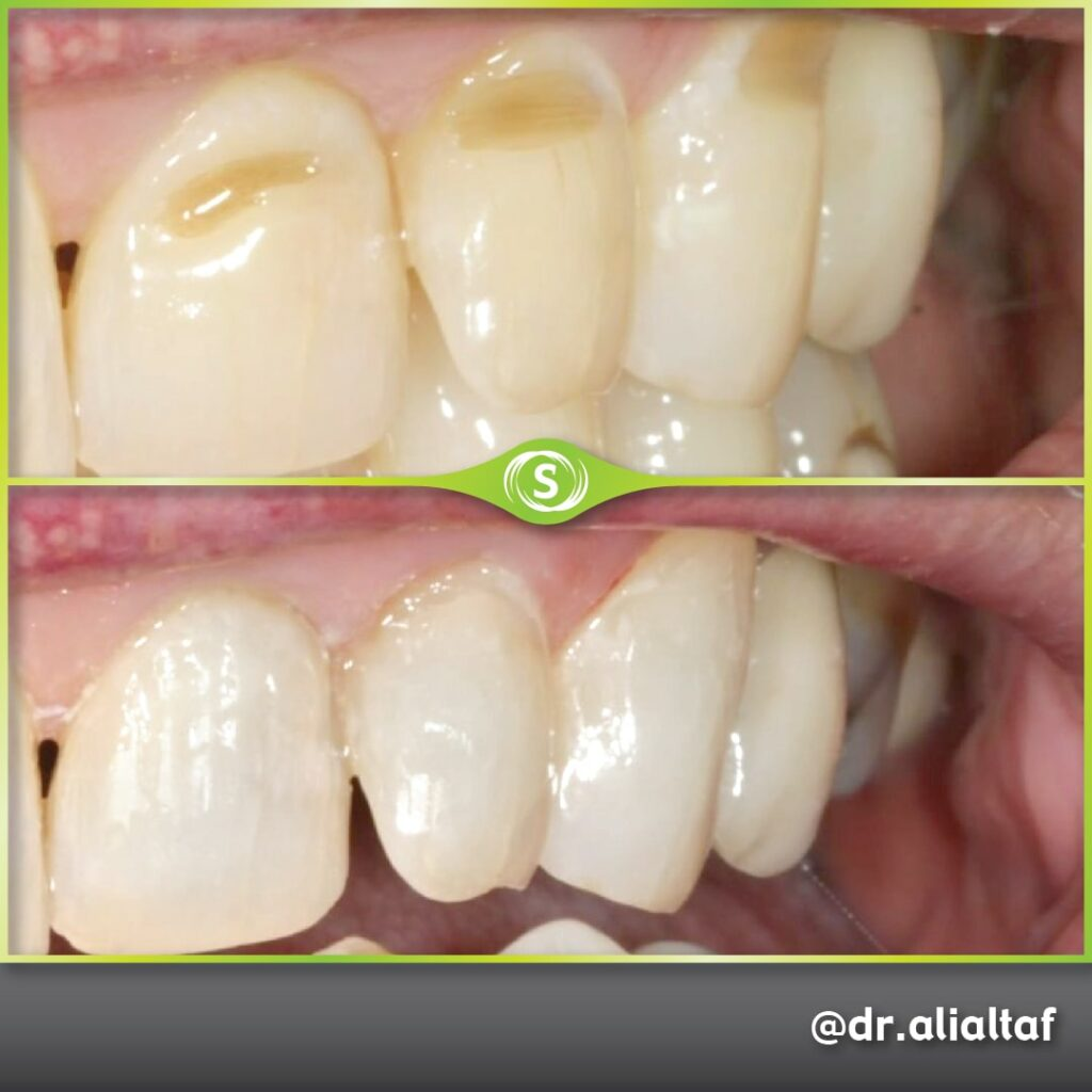 Composite Bonding - Dr. Ali Altaf