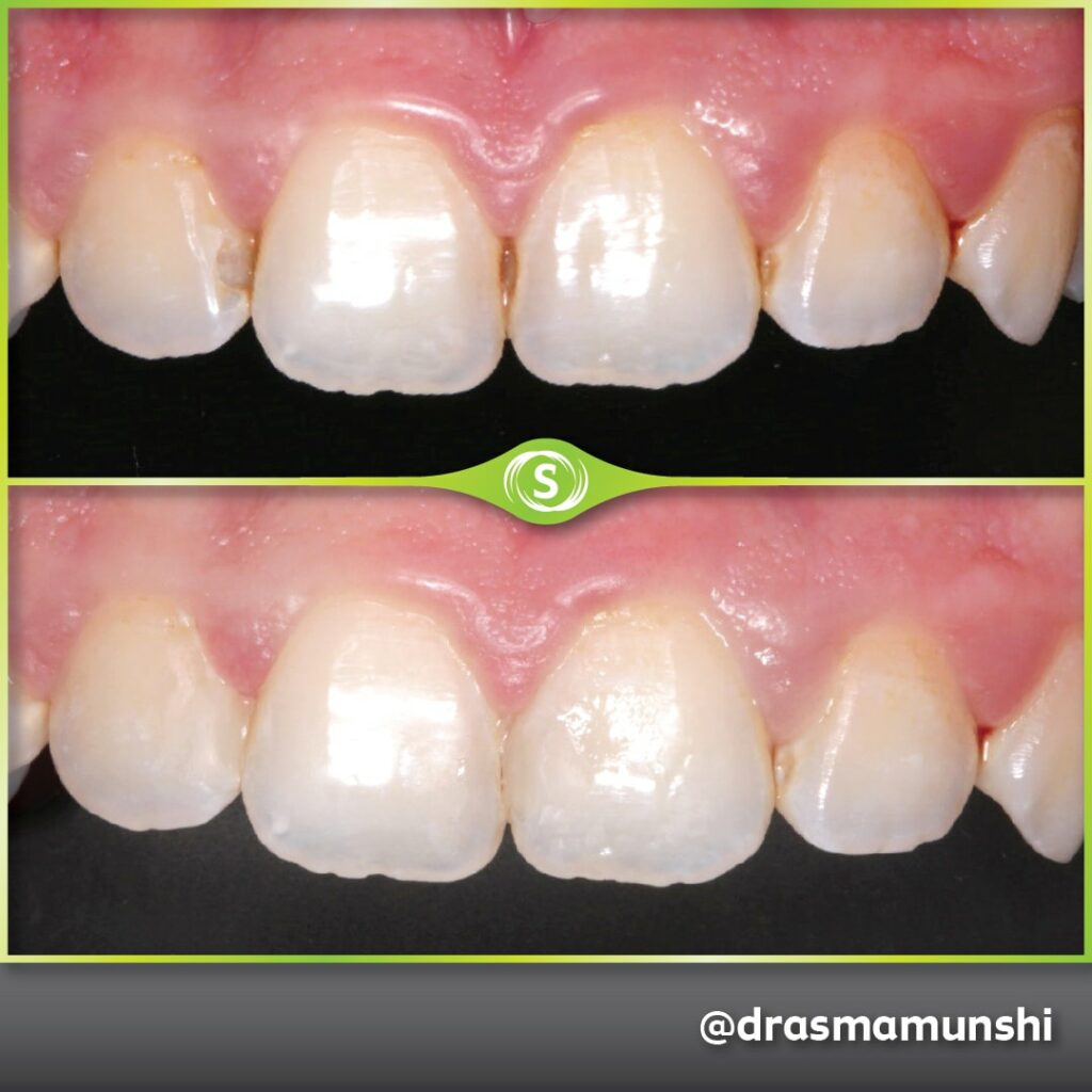 Composite Bonding - Dr. Asma Valli